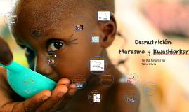 Marasmo y Kwashiorkor