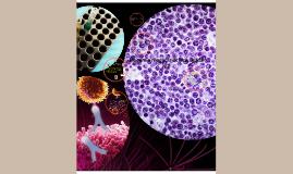 Leucemia megacariocitica aguda m7