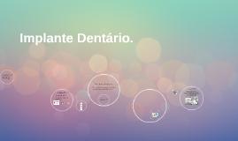 Implante Dentário.