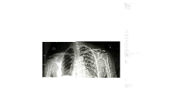 Bursitis: Pathophysiology