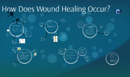 How Does Wound Healing Occur?