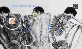 FORTALECIMIENTO DE LOS PROGRAMAS DE TUBERCULOSIS Y LEPRA