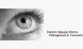 Diabetic Macular Edema: