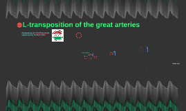 L-transposition of the great arteries