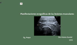 manifestaciones ecográficas  de las lesiones musculares
