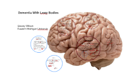 Dementia with Lewy Bodies