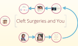 Cleft Surgeries and You