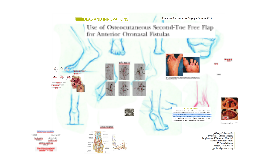2nd-toe free flap for oronasal fistulas