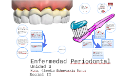 Copy of Enfermedad Periodontal