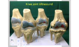 knee joint ultrasound
