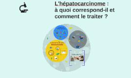 Hépatocarcinome