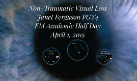 Non-Traumatic Visual Loss