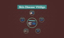 Skin Disease: Vitiligo