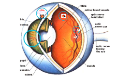 Dakota, Matthew and Aislynn's Retinal Detachment