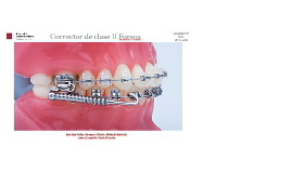 Copy of Corrector de clase II Forsus