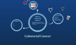 Copy of Colorectal Cancer