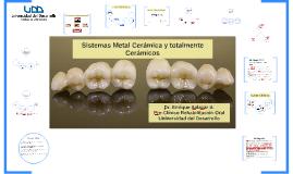 Sistemas Metal cerámica y completos cerámicos.