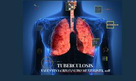 Copy of Copy of TUBERCULOSIS