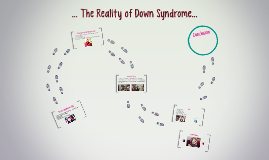 ... The Reality of Down Syndrome...
