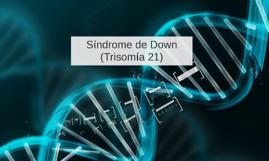 Sindrome de Down (Trisomia 21)