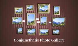 Conjunctivitis Photo Gallery