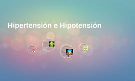 Hipertensión e Hipotencion