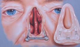 nose prosthetics
