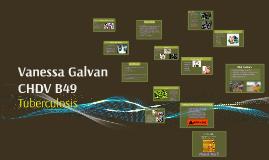 Vanessa Galvan