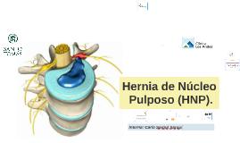 Hernia de Núcleo Pulposo