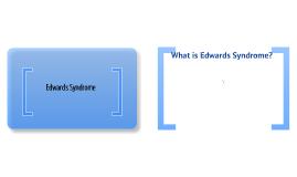 edwards syndrome
