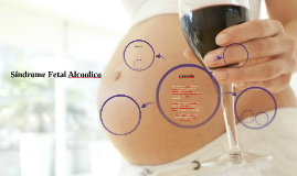Síndrome Fetal Alcoolico