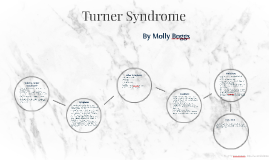Turner Sydrome