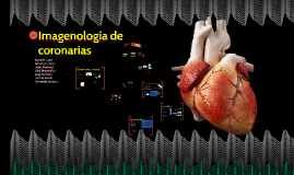 Copy of Imagelogía de coronarias