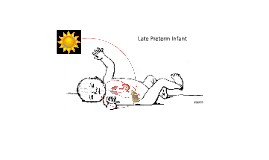 Late Preterm Infant