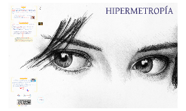 Hipermetropía.