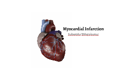 What is Myocardial Infarction?