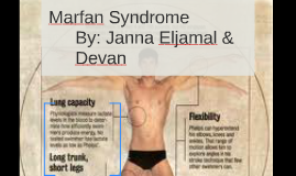 Marfan Syndrome