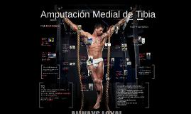 Amputación Medial de Tibia