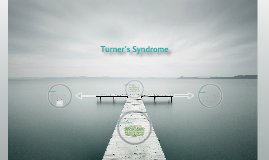 Tuner's syndrome