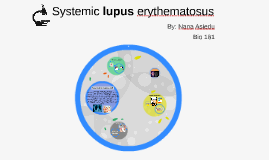 Copy of Systemic lupus erythematosus