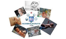 Copy of Neumonía Neonatal