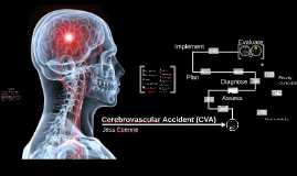 a case of cerebrovascular accident The holistic point of view of nursing care among patients with cerebrovascular accident can be applied in this case for this will open the door for us to grow more personally and professionally as a whole.