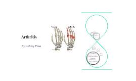 Arthritis  Presentation (6th Period)