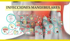 INFECCIONES MANDIBULARES