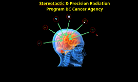 Stereotactic/Precision Radiation BC