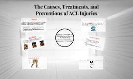 The Causes, Treatments, and Preventions of ACL Injuries