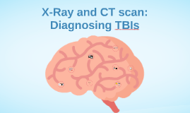 X-Ray and CAT scan
