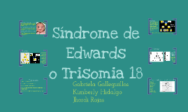 Copy of Síndrome de Edwards