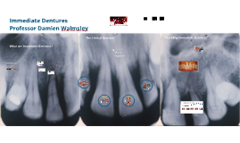 Immediate Dentures 2017