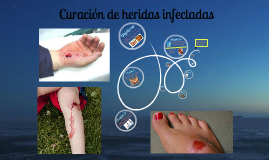 Copy of curacion de heridas infectadas